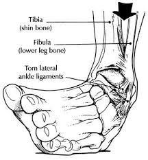 Impact injury resulting in ankle sprain and possible metatarsal fracture.