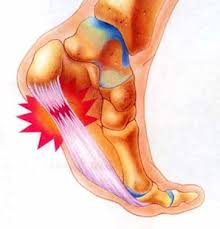 Heel pain from plantar fasciitis, sometimes also relating to a heel spur.  common from overuse injuries and poor foot mechanics.